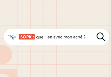 SOPK acné